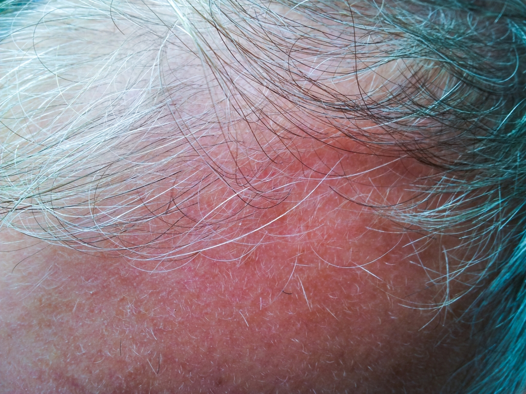 Grey hair, balding