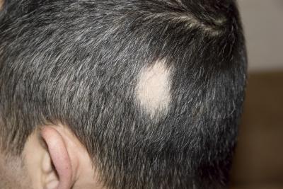 alopecia areata jaldun