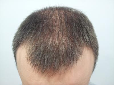 alopecia androgenetica masculina jaldun